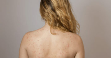 Back acne vrouw
