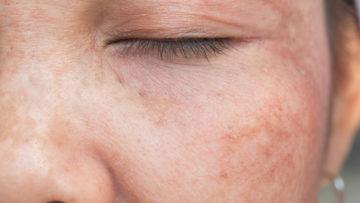 Pigmentvlekken in het gezicht van een vrouw