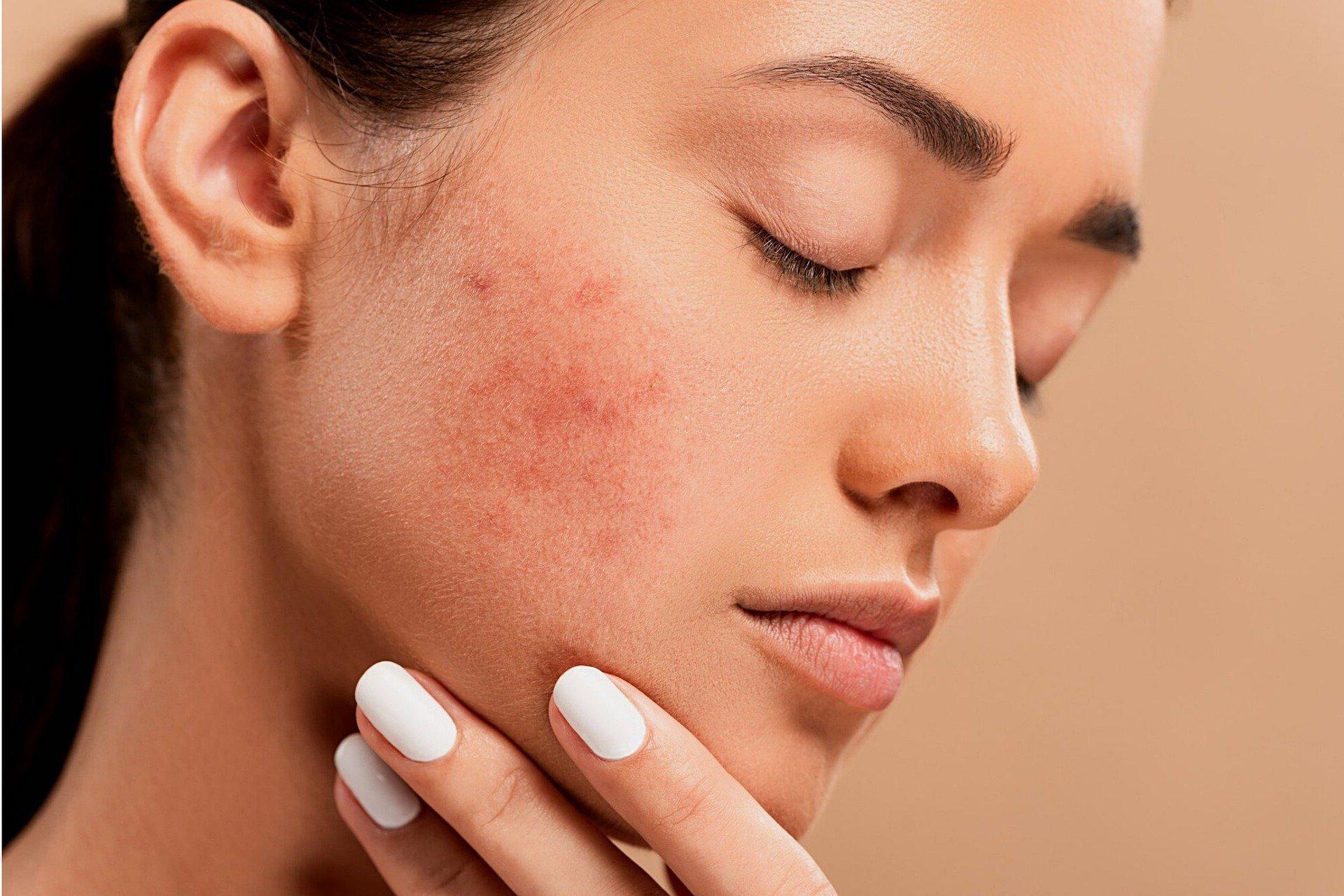 Vrouw met een rode huid op haar wangen