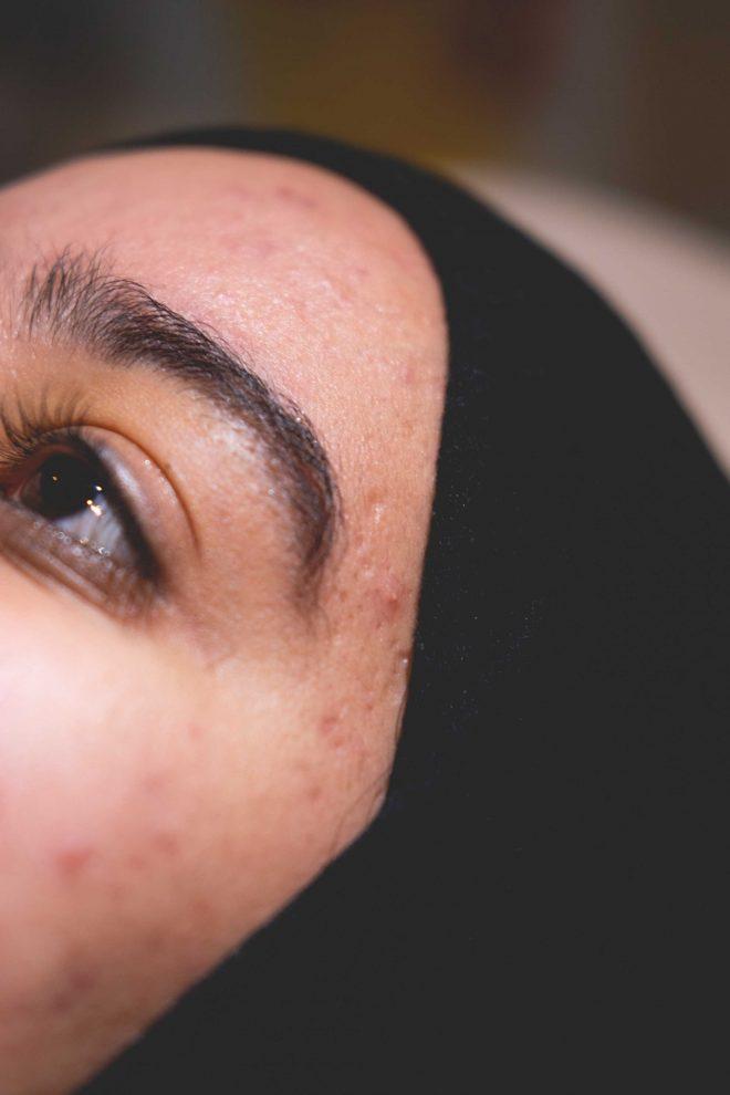 Acne littekens in het gelaat van een vrouw