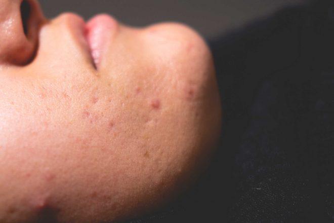 Acne littekens in het gezicht van een vrouw