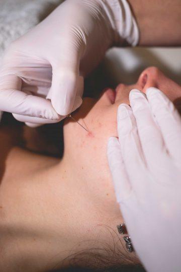 Acnetherapie, het verminderen van huidontstekingen