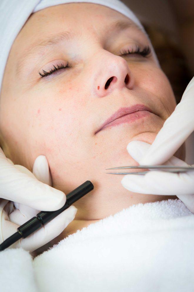 Een haar in het gezicht verwijderen door middel van elektrische ontharing