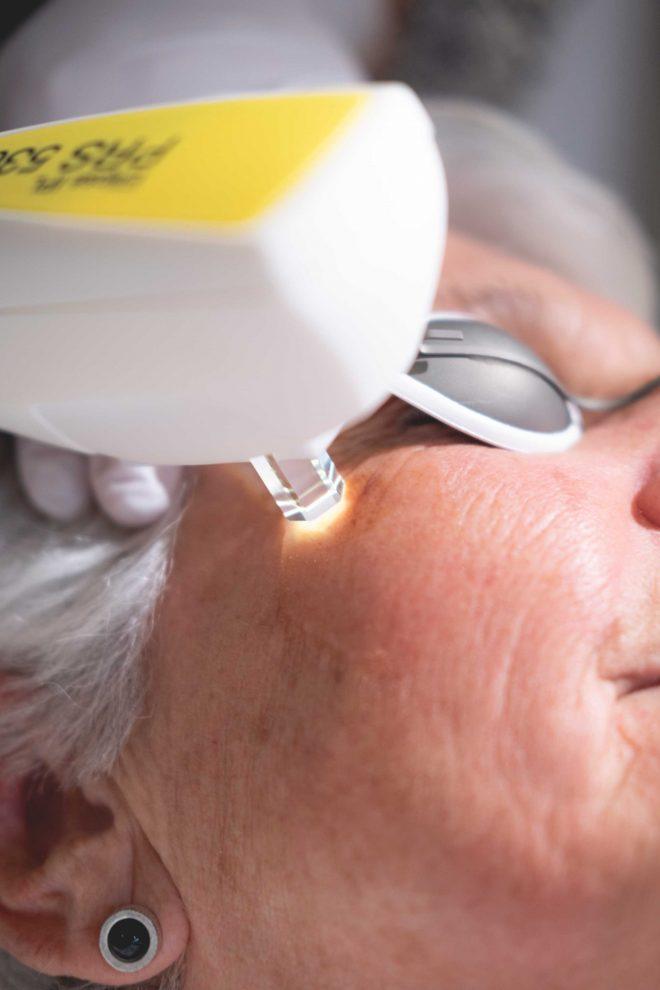 Vrouw krijgt IPL laserbehandeling om pigmentvlek te verwijderen