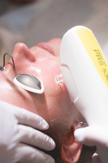 IPL behandeling van de rode huid in het gezicht