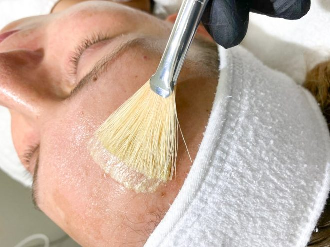 Vrouw krijgt MeLine Pigmentbehandeling op het gezicht