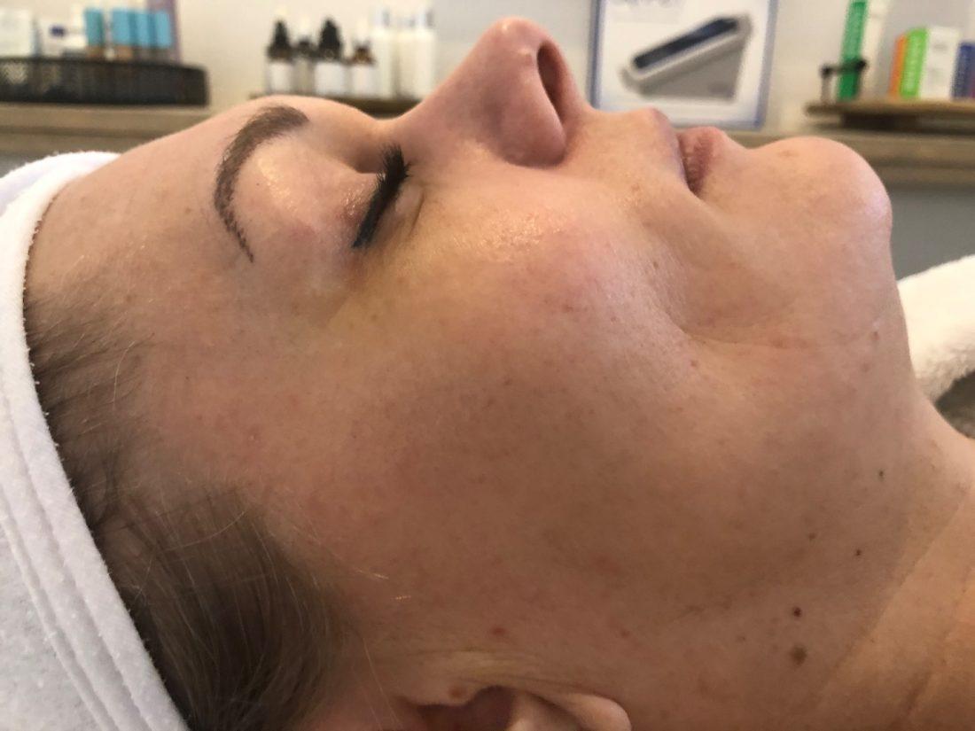 Vrouw na SkinPen medische microneedling behandeling en huidverbetering