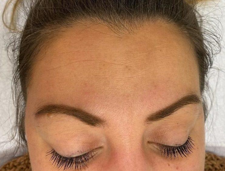 Vrouw na medische microneedling met SkinPen, de pigmentvlekken zijn bijna helemaal weg