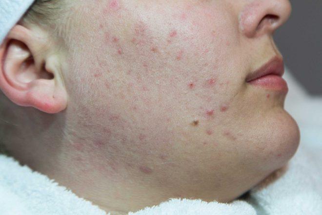 Rest acne, het eindstadium van actieve acne, in het gelaat