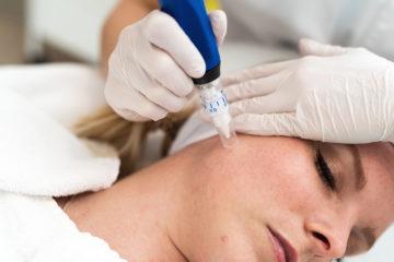 Skinpen medische microneedling gezicht bij Huidtherapie Eemland Amersfoort