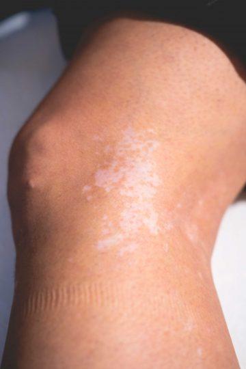 Vitiligo, ofwel een melkwitte vlek, op het been