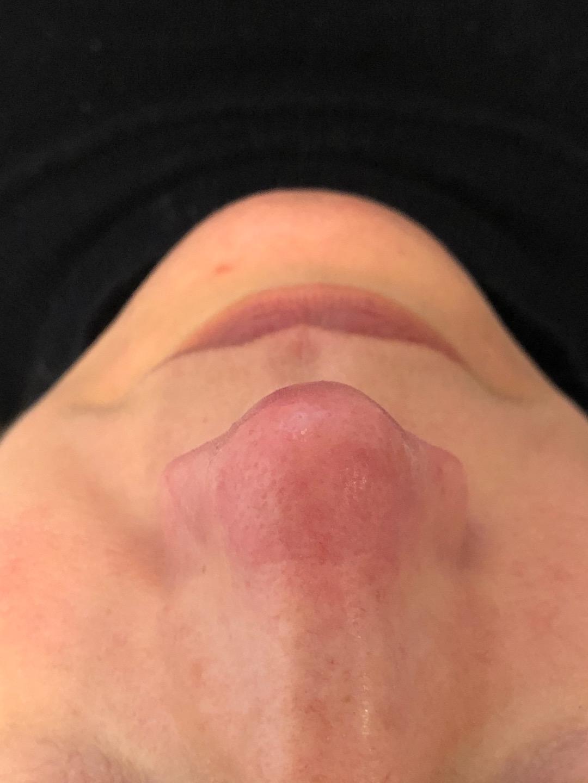 Vrouw met een rode neus, welke behandeld gaat worden door middel van IPL (lichtflitstherapie)