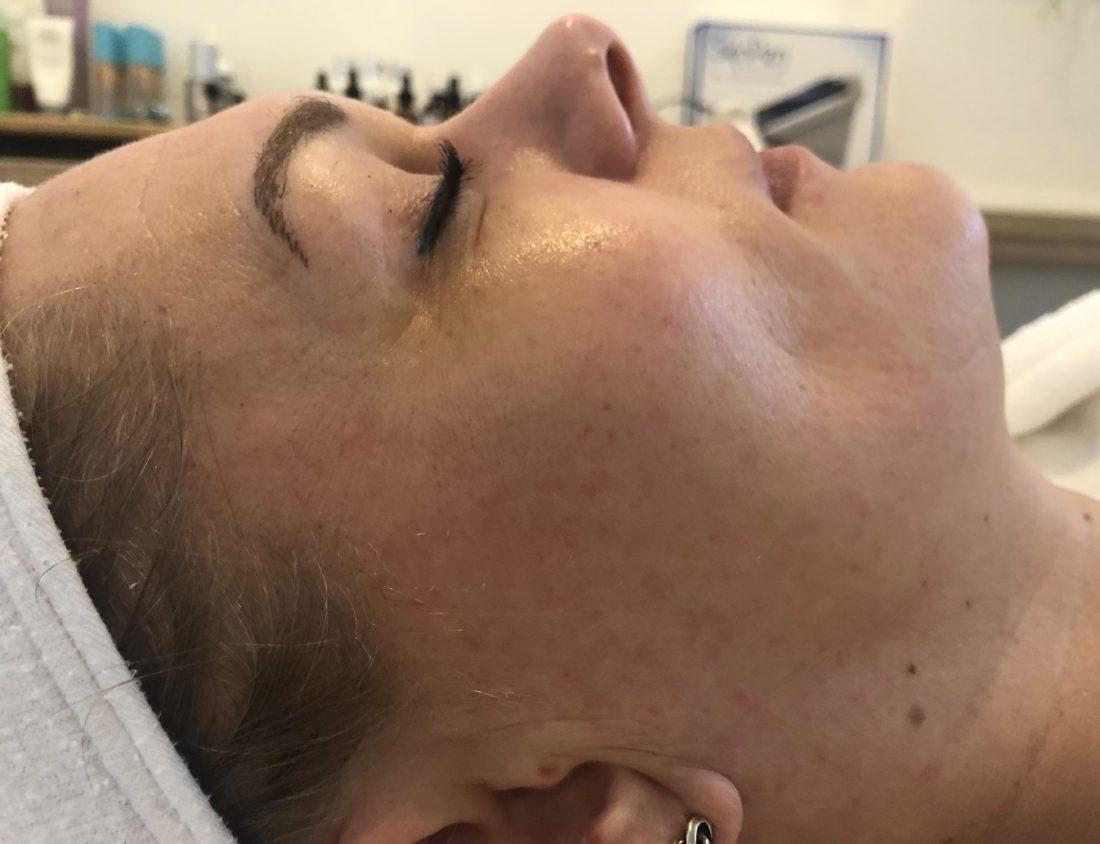 Vrouw voor medische microneedling behandeling