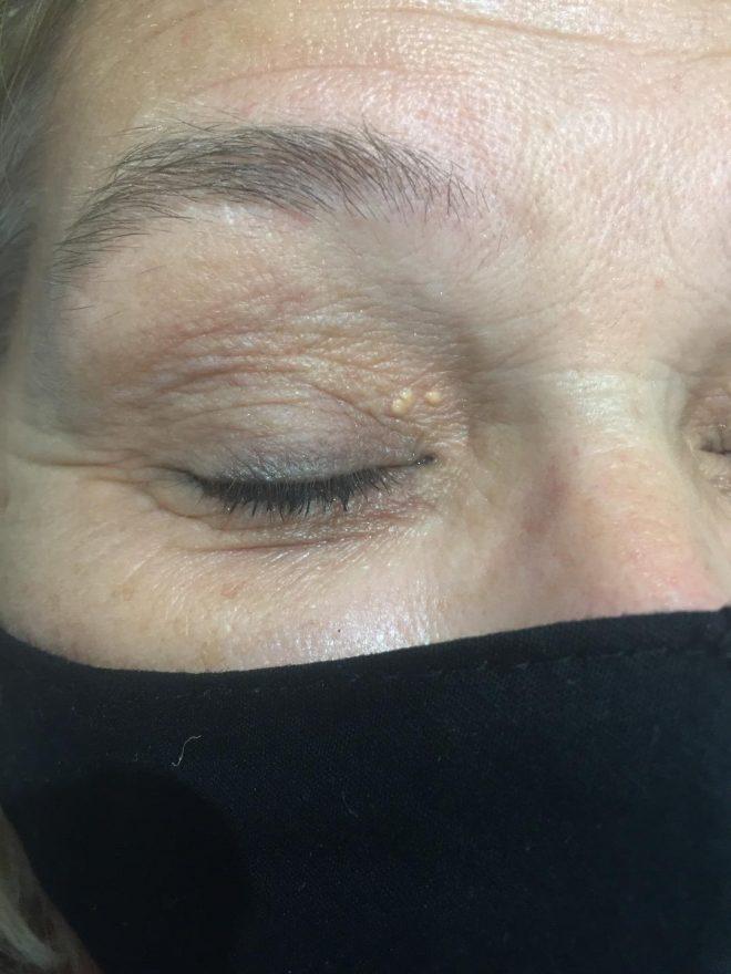 Huidbultje op het ooglid van een vrouw ofwel een