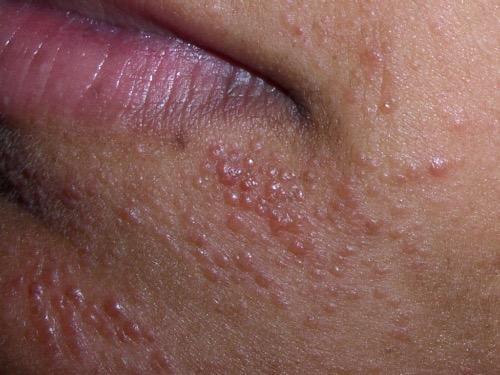 Dermatitis, ofwel clownseczeem rond de mond.