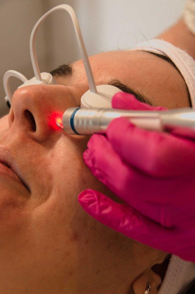 Een vrouw krijgt een KTP laserbehandeling  aan een vaatje bij haar neus