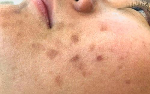 Post inflammatoire hyperpigmentatie, ofwel donkere pigmentvlekjes ontstaat na een huidbeschadiging in het gelaat