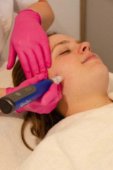 Skinpen Behandeling bij Huidtherapie Eemland