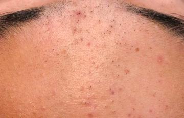acne comedonica op het voorhoofd