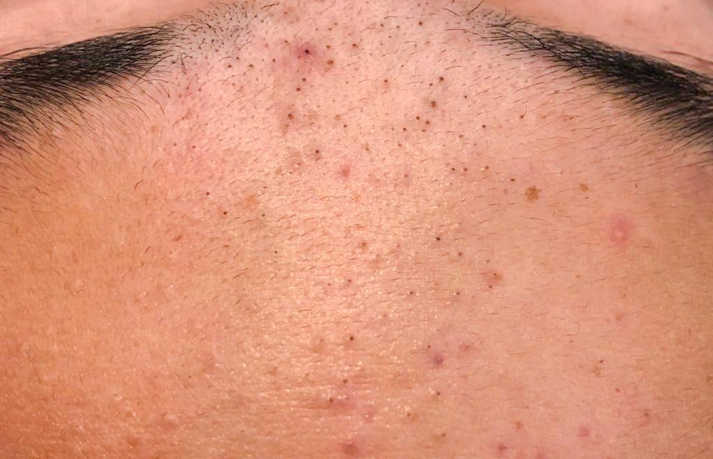 acne comedonica een vorm van acne met veel mee-eters op het voorhoofd