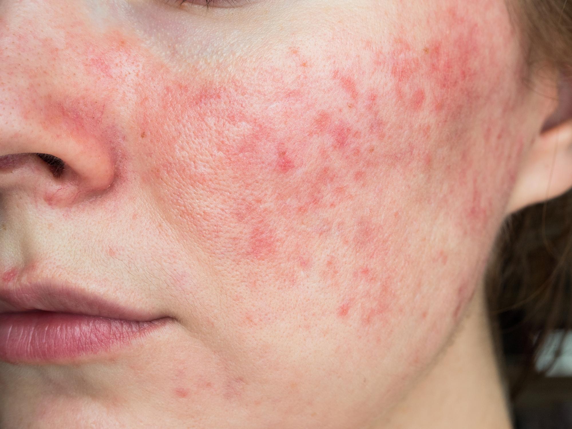 Post inflammatoir erytheem, een rode huid na actieve acne