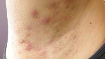 Hidradentitis suppurativa in de oksel