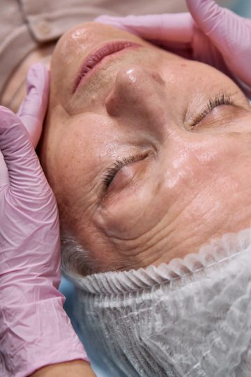 Huidveroudering anti aging in het gezicht van een dame