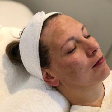 Melasma, ofwel zwangerschapsmasker in het gezicht
