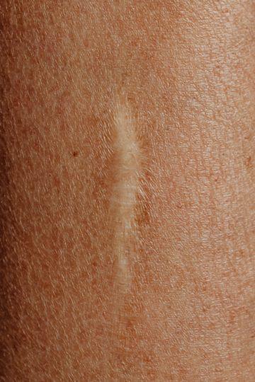 Atrofisch litteken, ofwel ingezonken litteken