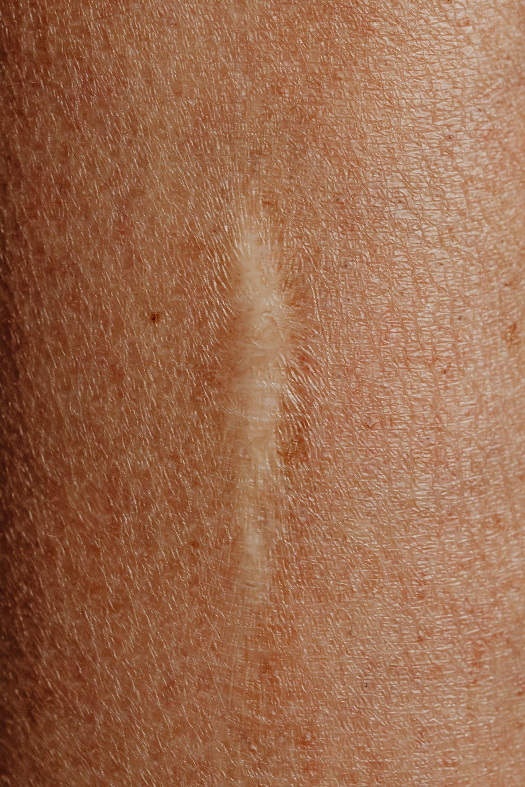 Atrofisch litteken, ofwel ingezonken litteken in de huid