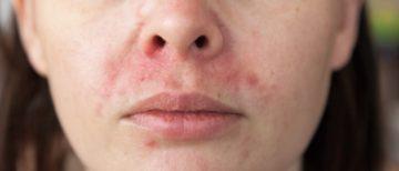 Dermatitis perioralis ofwel een ontstoken rode huid rond de mond