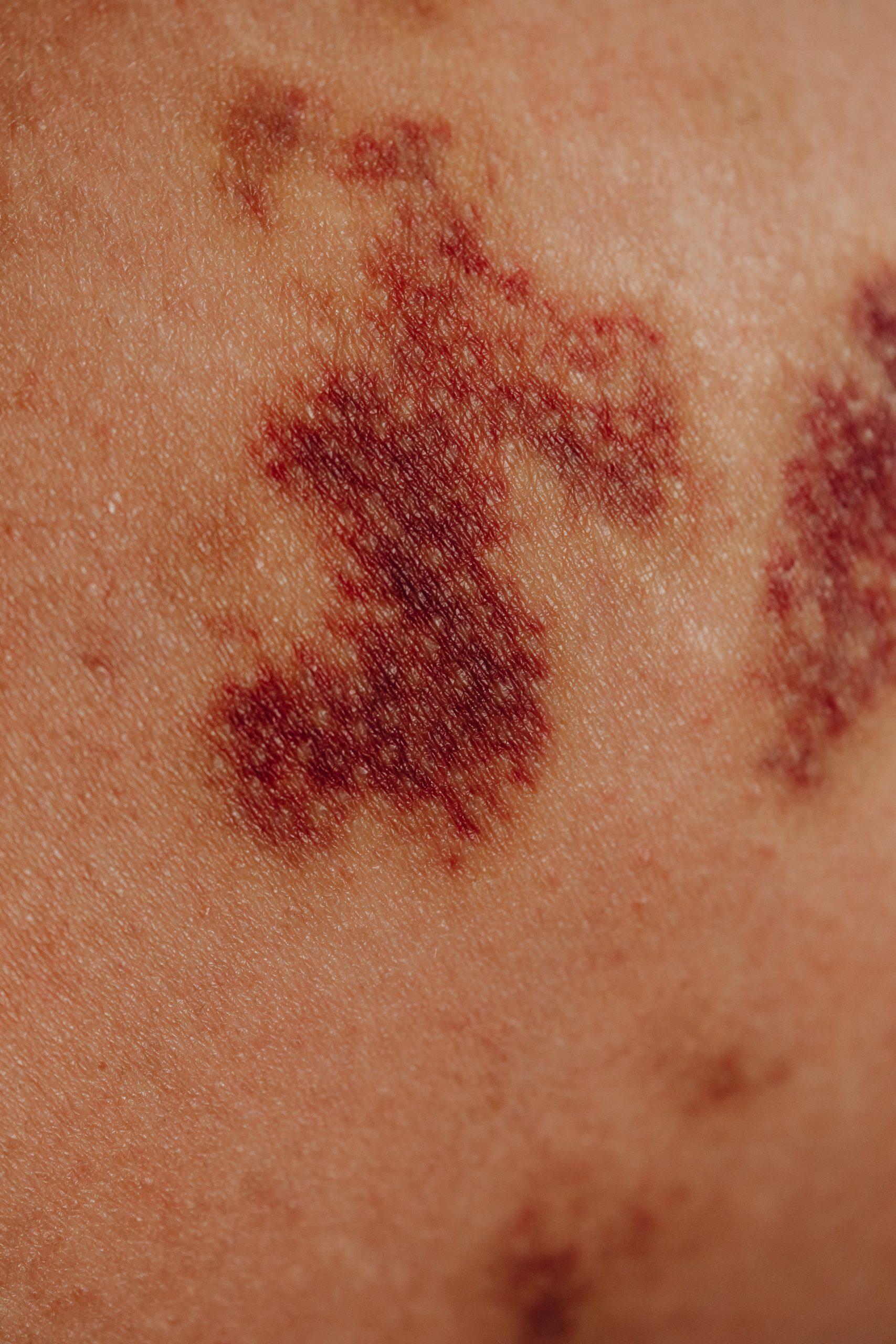 Een wijnvlek, if naevus flammeus, een goedaardige vaatafwijking van de huid